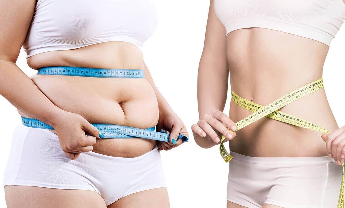 Fett reduzieren durch Fett-Weg-Spritze, Liposuktion und Hautstraffung